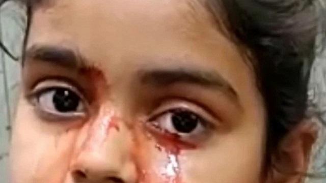 Почему 11-летняя девочка плачет кровью