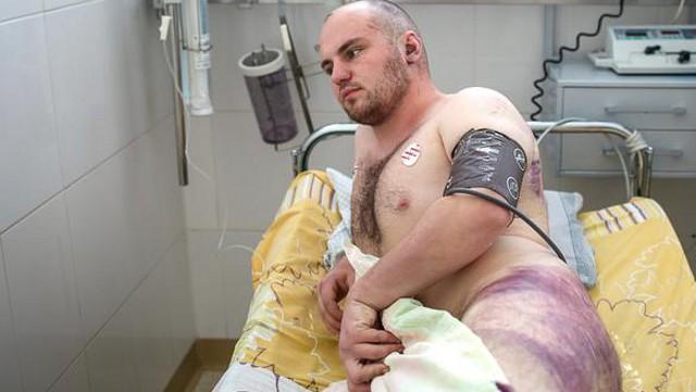 «Били, били… В основном по ногам и ягодицам». Монологи жертв избиений из больниц Беларуси
