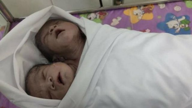 Мальчик с двумя головами родился в деревенской семье