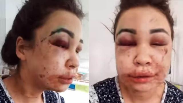 Девушку похитили из скорой помощи, избили и изнасиловали в Казахстане