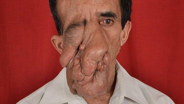 Врачи удалили уродливую опухоль с лица 60-летнего мужчины