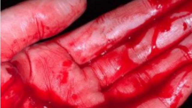 «Молотком по голове»: Россиянин напал на прохожую, перепутав ее с женой