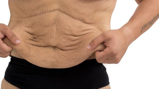 «Не узнаю себя в зеркале»: 320-килограммовый мужчина похудел вдвое
