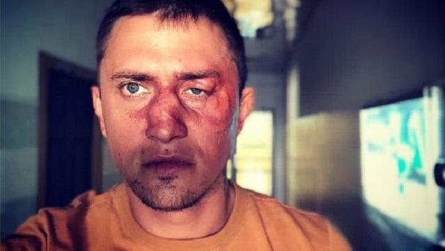 Павел Прилучный впервые прокомментировал свое избиение
