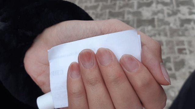 Женщина получила химический ожог ногтевых пластин, используя гель-лак в Костанайской области