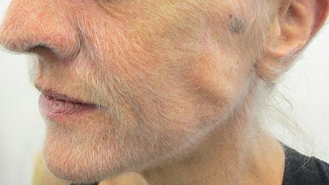 Борода 51-летней женщины оказалась симптомом смертельной болезни