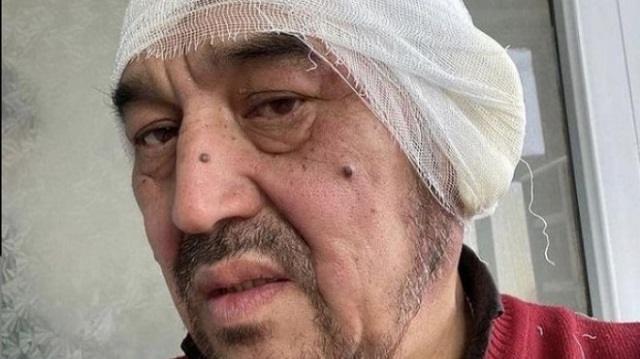 Водитель на трассе в Карагандинской области отморозил уши. Их пришлось ампутировать