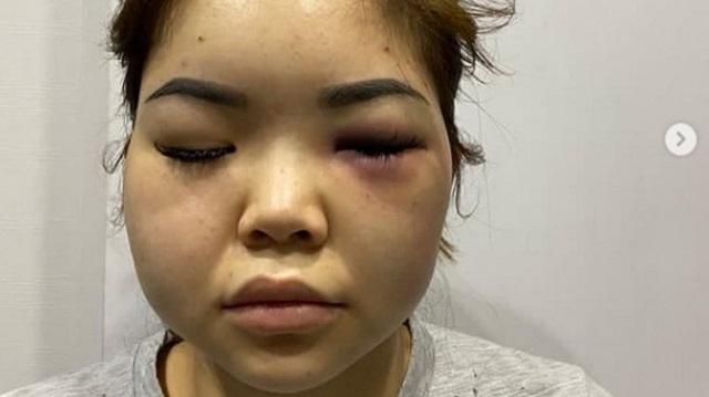 «Облил водой на балконе»: Астанчанка заявила о жестоком избиении
