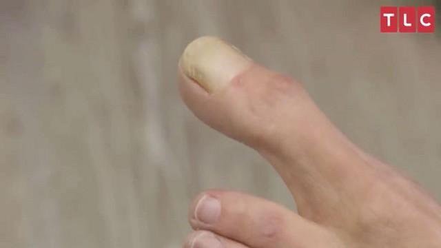 Женщина со сверхдлинным пальцем шокировала врачей и Сеть