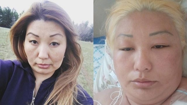 Казахстанку госпитализировали после процедуры в салоне красоты