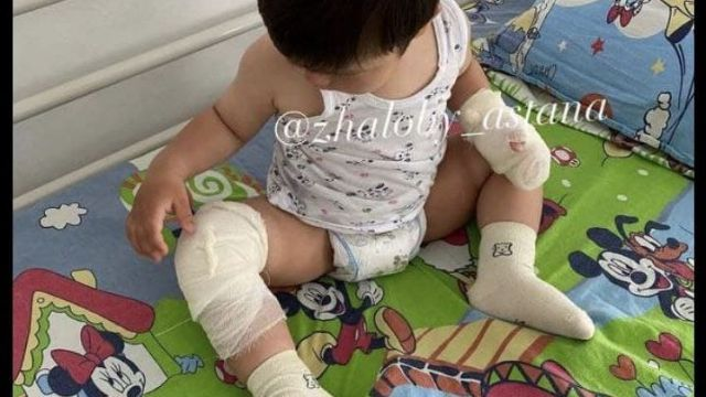 Ребёнок получил ожоги на спортплощадке в Нур-Султане