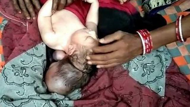«Воплощение бога»: Трёхголовый младенец родился в Индии