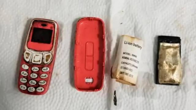 Врачи извлекли из желудка мужчины кнопочный телефон